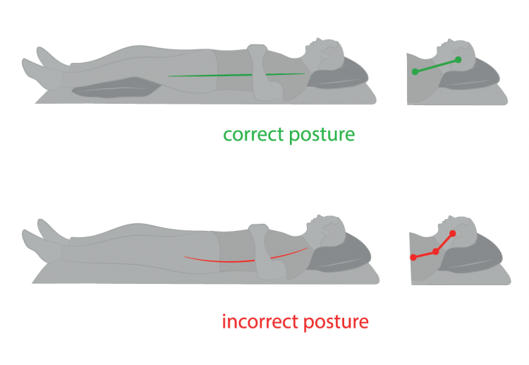 sleeping posture e1492650250734 Why Your Neck Hurts and What You Can do to Fix it